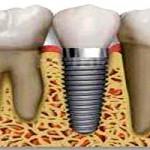¿Es suficiente una radiografía para hacerme un implante?