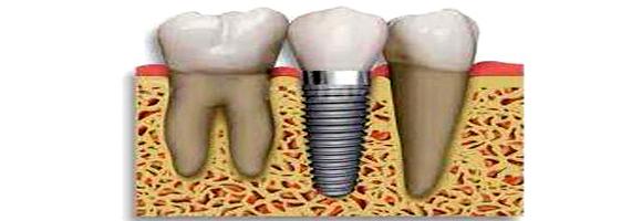 Implantes11