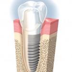¿Cuántos implantes son necesarios? ¿Cuántos más mejor?
