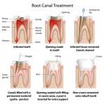 ¿Son todas las endodoncias iguales?