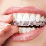 Invisalign: conoce el tratamiento de ortodonca invisible