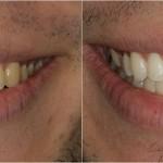 Blancorexia: cuando tener los dientes blancos se convierte en una obsesión