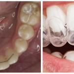 Consejos para la etapa de retención después de la ortodoncia