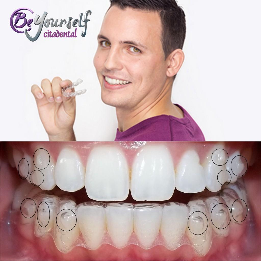 ataches ortodoncia invisible Invisalign