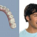 Ortodoncia invisible: descubre cómo será tu sonrisa a través de la simulación 3D
