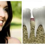 Implantes dentales: ¿cuáles son las fases de su colocación?
