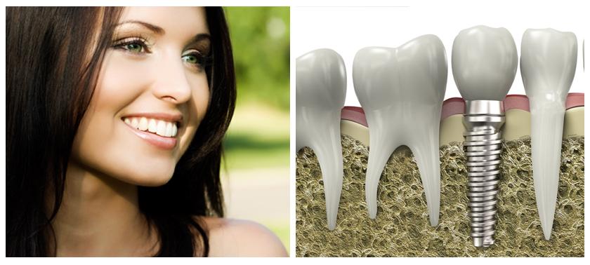implantes dentales dudas