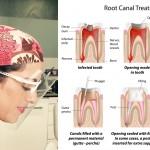 ¿Qué es la endodoncia? Descubre este procedimiento para tu salud dental