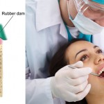 Endodoncia: resuelve todas tus dudas sobre este procedimiento dental