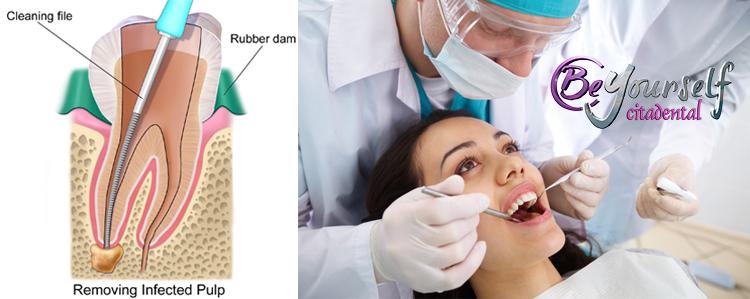 endodoncia preguntas frecuentes