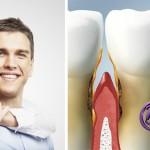 Enfermedades periodontales: ¿cuál es la diferencia entre gingivitis y periodontitis?