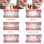 Ortodoncia invisible: ¿en qué casos se puede usar Invisalign?