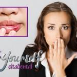 ¿Qué son las aftas bucales? Conoce por qué se producen estas llagas en la boca