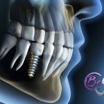 ¿Qué es la osteointegración? Conoce la clave del éxito del implante dental