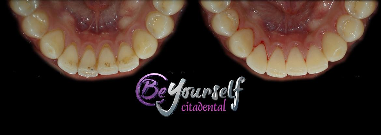 Placa y sarro dental son los mismo descubre qu los diferencia blog beyourself centers - Eliminar sarro en casa ...