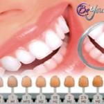 Blanqueamiento Dental: Aspectos a tener en cuenta