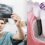 Implantes de carga inmediata: estética y funcionalidad en una sola sesión
