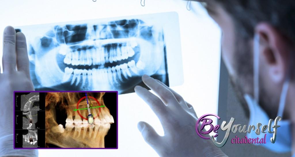 implante cirugía guiada por ordenador citadental