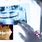Colocación de implantes a través de cirugía guiada por ordenador