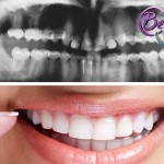 ¿Qué es la dentinogénesis imperfecta?