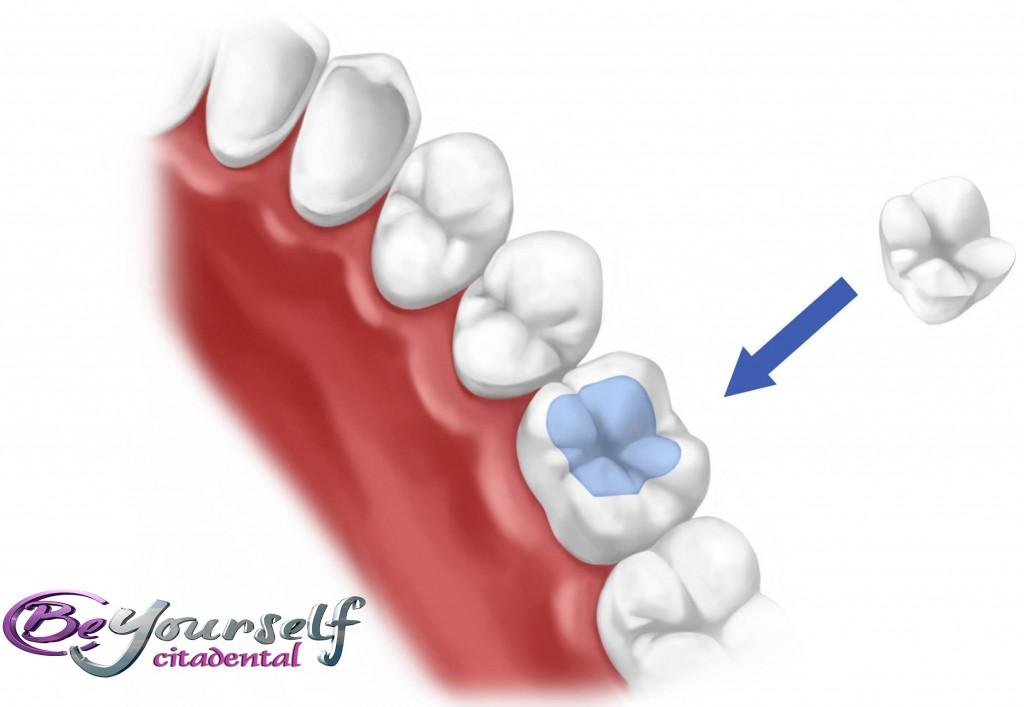 incrustaciones dentales empastes