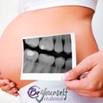 ¿Existe peligro para el feto si te realizas una radiografía dental durante el embarazo?