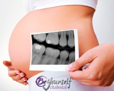 embarazo radiografía dental