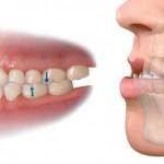 Disyunción maxilar: causas y tratamientos de la mordida cruzada en niños