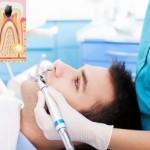 ¿Por qué a veces hay dolor tras unos meses en una pieza dental endodonciada?