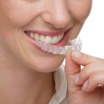 Ventajas y beneficios de Invisalign