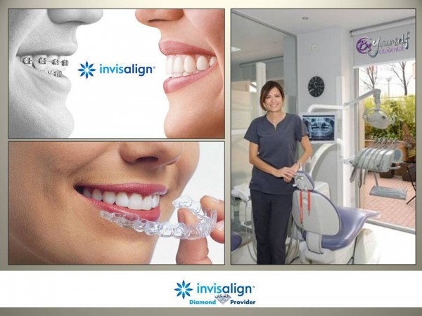 La confianza de nuestros pacientes nos concede la certificacin de la confianza de nuestros pacientes nos concede la certificacin de invisalign diamond mximo reconocimiento en ortodoncia invisible solutioingenieria Choice Image