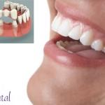 ¿Pérdida de dientes? Desventajas del puente fijo frente a los implantes dentales
