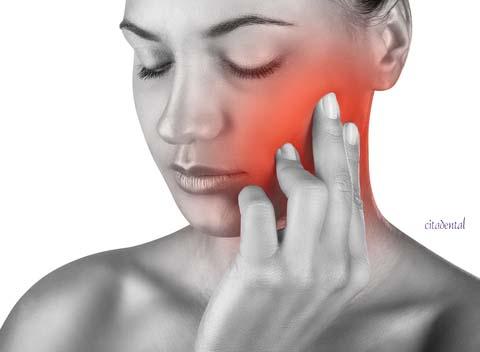 dolor dientes citadental