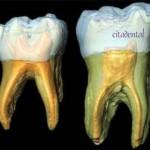 Conociendo la Endodoncia