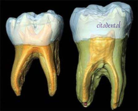 endodoncia citadental